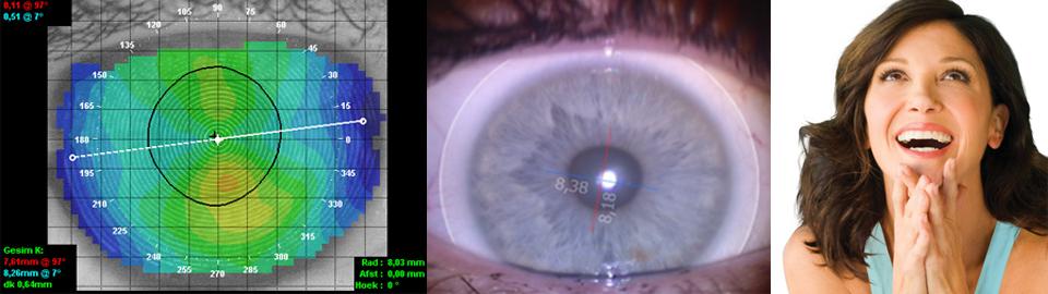Unique Lens