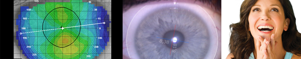 UniqLens: multifocale lens